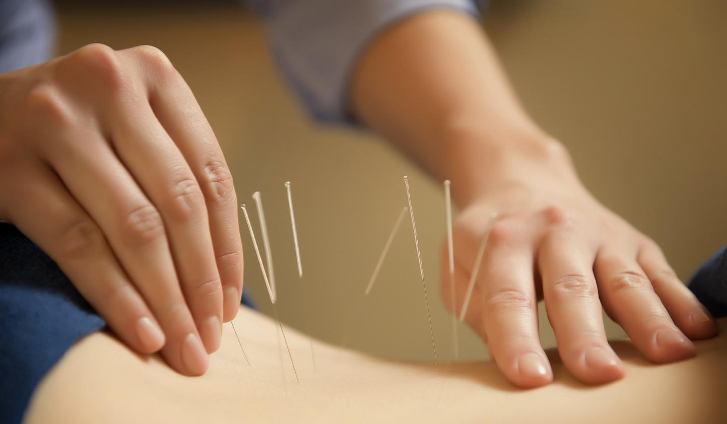 image of dry needling for lower back pain
